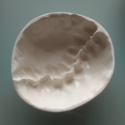 spine-bowl